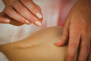 рефлексотерапия в гинекологии