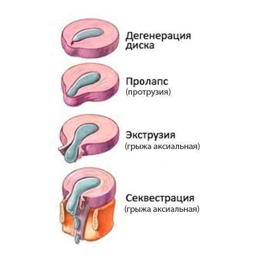 Какие виды грыж позвоночника существуют и чем они различаются ...